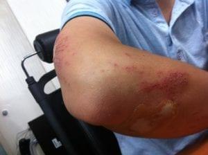 Why Do Bruises Appear Randomly For No Reason